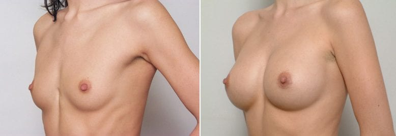 , Decision Point for Saline vs. Silicone Implants